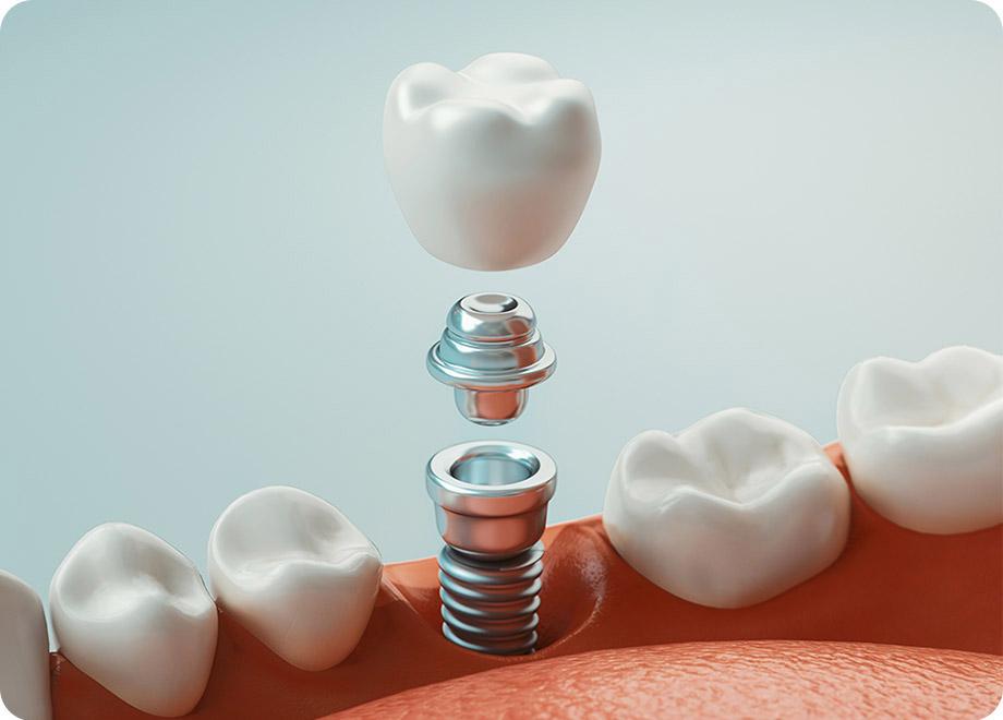 歯を残すためのインプラント