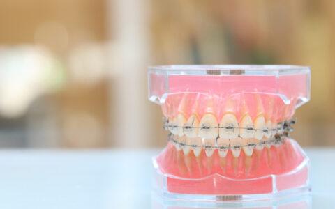歯並び本当にこれでいいの?