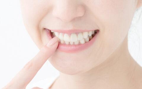 あきらめないで‼理想の白い歯