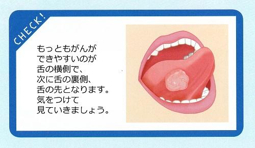 口腔がん 2 500