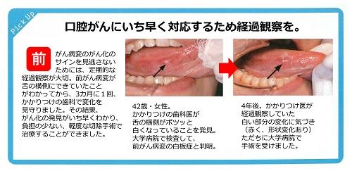 口腔がん 5 500
