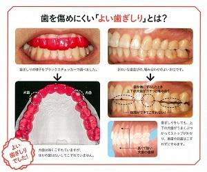 201901nico歯ぎしり03 300