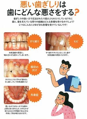 201901nico歯ぎしり05 300