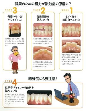 20190422sanshoku01 300酸蝕症は現代病2